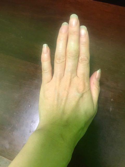 my fingernail story 2